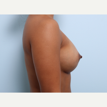 Breast Augmentation after 3459933