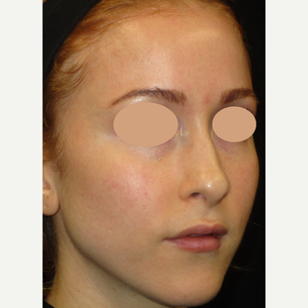 25-34 year old woman treated with Laser Treatment before 3091025