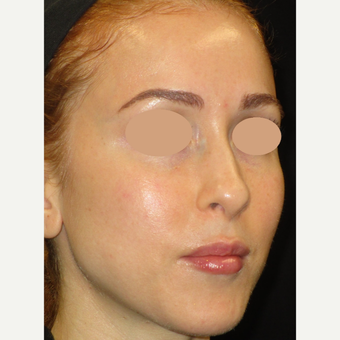 25-34 year old woman treated with Laser Treatment after 3091025
