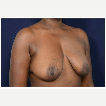 35-44 year old woman treated with Breast Lift before 3246070