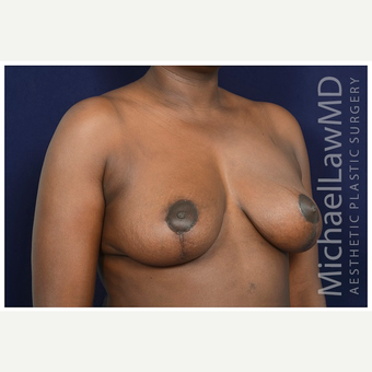 35-44 year old woman treated with Breast Lift after 3246070