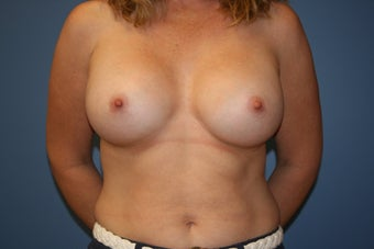 Breast augmentation with saline implants after 81817