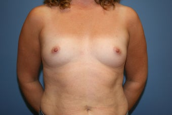 Breast augmentation with saline implants before 81817