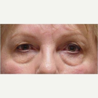 65-74 year old woman treated with Eye Bags Treatment before 1799501