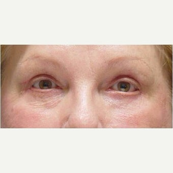 65-74 year old woman treated with Eye Bags Treatment after 1799501