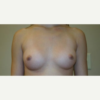 25-34 year old woman treated with Breast Augmentation before 1661071