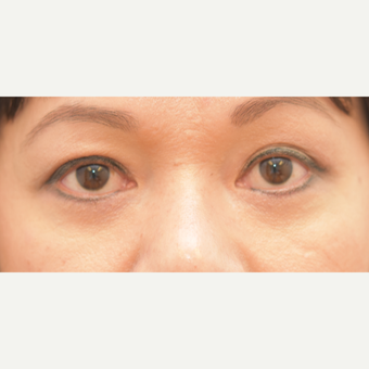 46 year old woman treated with Eye Bags Treatment
