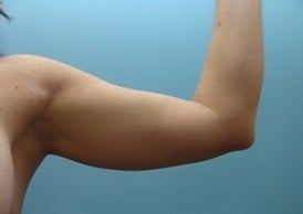 42 Year Old Treated for Arm Fullness  before 1068021
