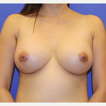 25-34 year old woman treated with Breast Augmentation after 3267416
