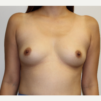 25-34 year old woman treated with Breast Augmentation before 3267416