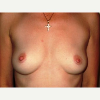 18-24 year old woman treated with Breast Implant Removal after 1540318