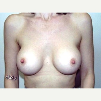 18-24 year old woman treated with Breast Implant Removal before 1540318