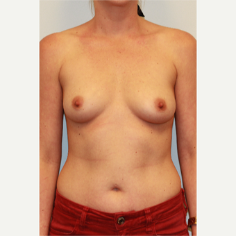 25-34 year old woman treated with Breast Augmentation before 3027058