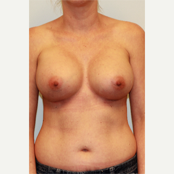 25-34 year old woman treated with Breast Augmentation after 3027058