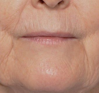 62 Year Old Female Treated for Upper Lip Wrinkles