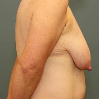 45-54 year old woman requesting a Breast Lift before 3346497