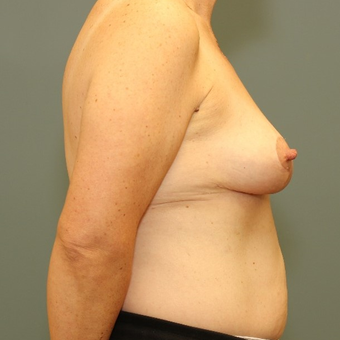 45-54 year old woman requesting a Breast Lift after 3346497