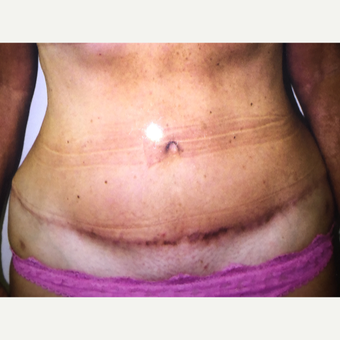 45-54 year old woman treated with Tummy Tuck after 3333616