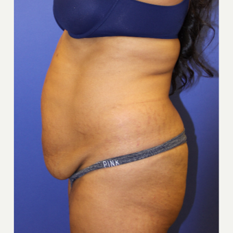 45-54 year old woman treated with Tummy Tuck before 3207186