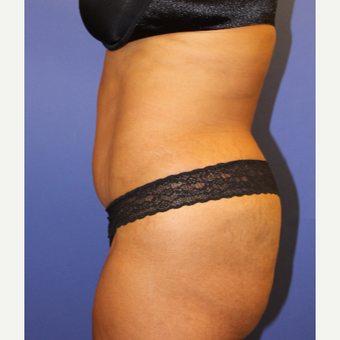 45-54 year old woman treated with Tummy Tuck after 3207186