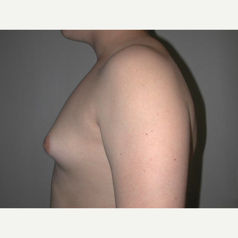 25-34 year old man treated with Male Breast Reduction before 3727267