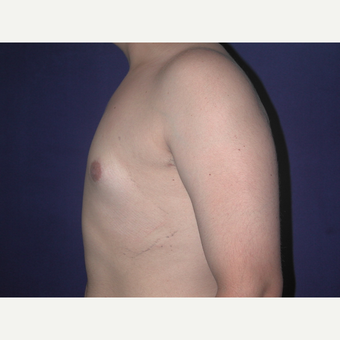 25-34 year old man treated with Male Breast Reduction after 3727267