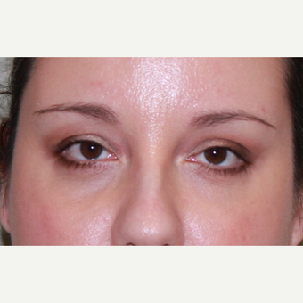 38 year old woman treated with Fat Transfer, transconjunctival lower blepharoplasty, CO2 laser after 3100522
