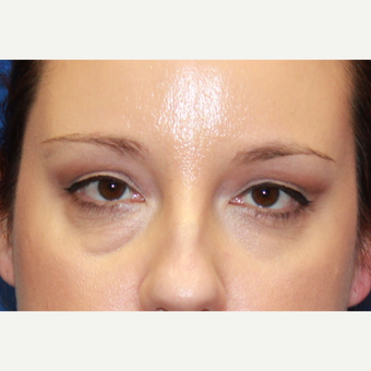38 year old woman treated with Fat Transfer, transconjunctival lower blepharoplasty, CO2 laser before 3100522