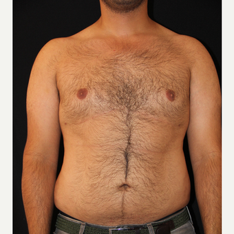 25-34 year old man treated with Liposuction after 3225760