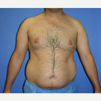 25-34 year old man treated with Liposuction before 3225760