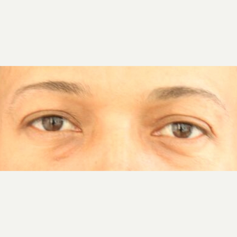 25-34 year old man treated with Eyelid Surgery after 3841977