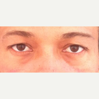 25-34 year old man treated with Eyelid Surgery before 3841977