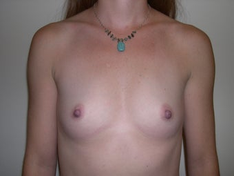 Breast Implants/Breast Augmentation  before 368713