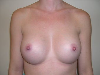 Breast Implants/Breast Augmentation  after 368713