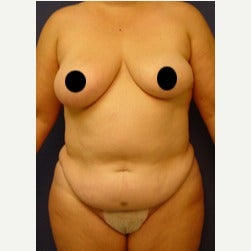 45-54 year old woman treated with Mini Tummy Tuck before 2072885