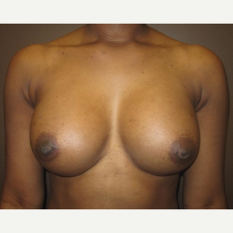 18-24 year old woman treated with Breast Implants after 3418181