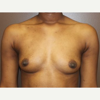 18-24 year old woman treated with Breast Implants before 3418181