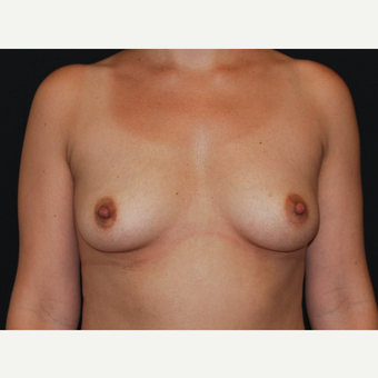 35-44 year old woman treated with Breast Implants before 3651089