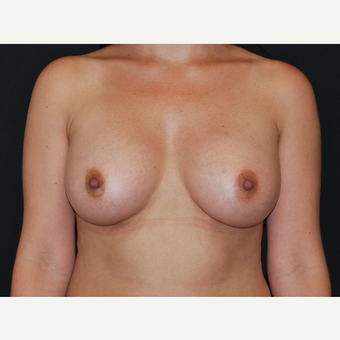 35-44 year old woman treated with Breast Implants after 3651089