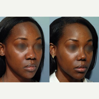 25-34 year old woman treated with African American Rhinoplasty before 1659293