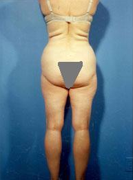 Liposuction of Back Rolls before 289515