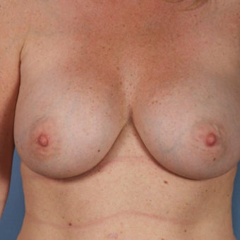 Breast Implant Removal before 1603748