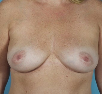 Breast Implant Removal after 1603748