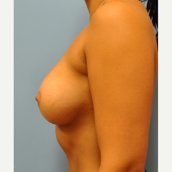 25 year old  A to full C cup, breast augmentation- 325 cc MPP filled to 350 cc after 3584223