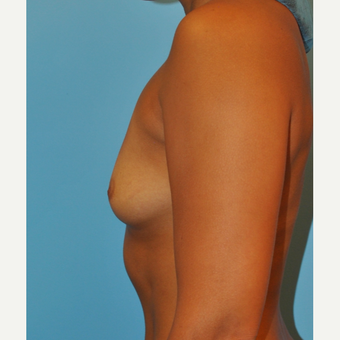 25 year old  A to full C cup, breast augmentation- 325 cc MPP filled to 350 cc before 3584223