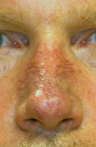 56 Year Old Male Treated for Facial Veins before 1129778