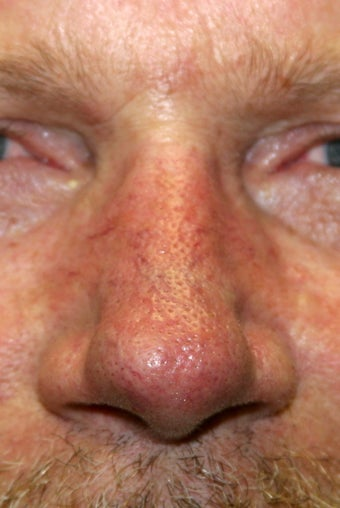 56 Year Old Male Treated for Facial Veins after 1129778