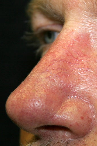 56 Year Old Male Treated for Facial Veins 1129778