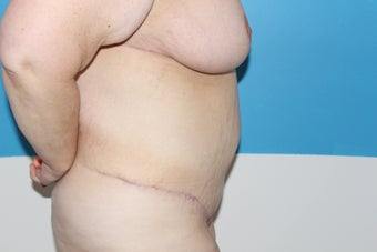 44 yo woman seeking body contouring after gastric bypass after 1365284