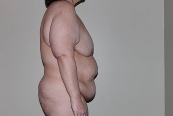 44 yo woman seeking body contouring after gastric bypass before 1365284